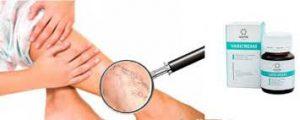 Varicream - Nebenwirkungen - erfahrungen - Bewertung